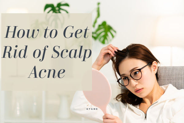 How to Get Rid of Scalp Acne