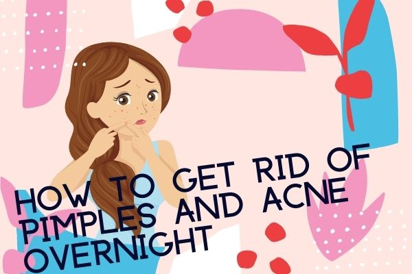 how to get rid of pimple overnight