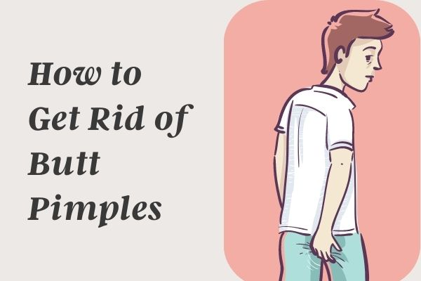 How to Get Rid of Butt Pimples